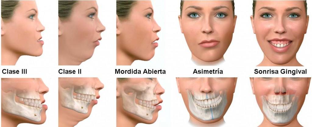Cirugía Ortognática en Torrejón de Ardoz