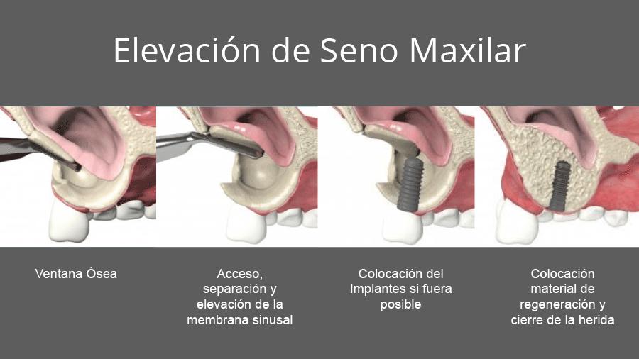 Tratamiento de elevación de Seno Maxilar en Torrejón