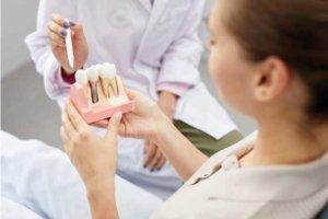 Estudio implantologico en Torrejon