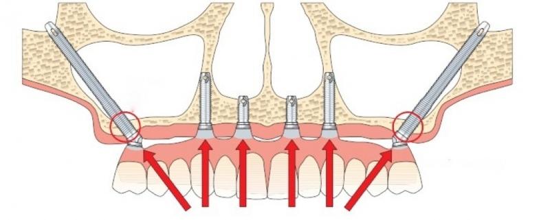 Implantes Cigomáticos en Torrejón de Ardoz