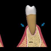 Pérdida de hueso en implantes