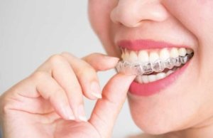 Tu ortodoncia estética en Torrejón de Ardoz