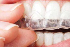 Tratamiento de Ortodoncia Invisible Invisalign en Torrejón