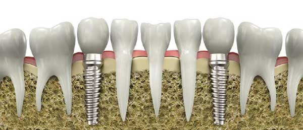 Desventajas puente dental