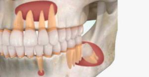 Cirugía y extracción del quiste radicular
