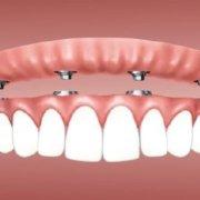Sobredentadura sobre implantes en Torrejón